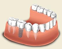 Iimplantologie (Zahnimplantat)