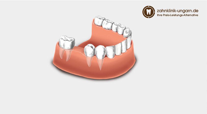 Zahn erfahrung implantat Misserfolge bei